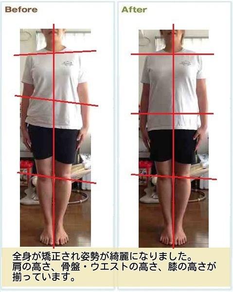 産後骨盤矯正を受けたお客様の体形変化2