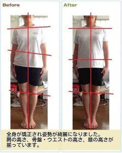 産後骨盤矯正の流れ 効果測定