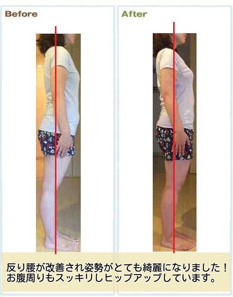 産後の腰痛改善例1