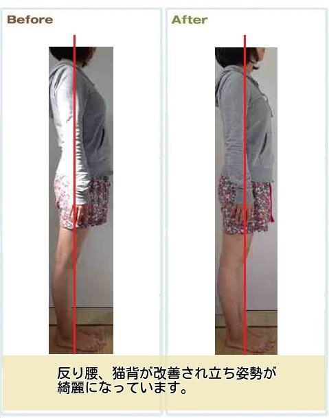 産後の腰痛改善例2