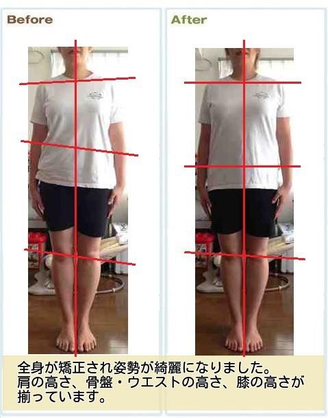 産後骨盤矯正を受けると1回目から骨盤が整い、姿勢が綺麗になります。