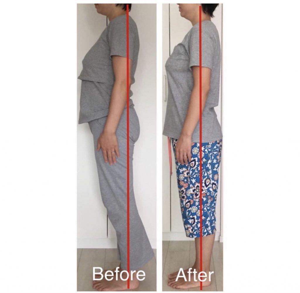 産後骨盤矯正を受けると産後の膝痛が改善されます。
