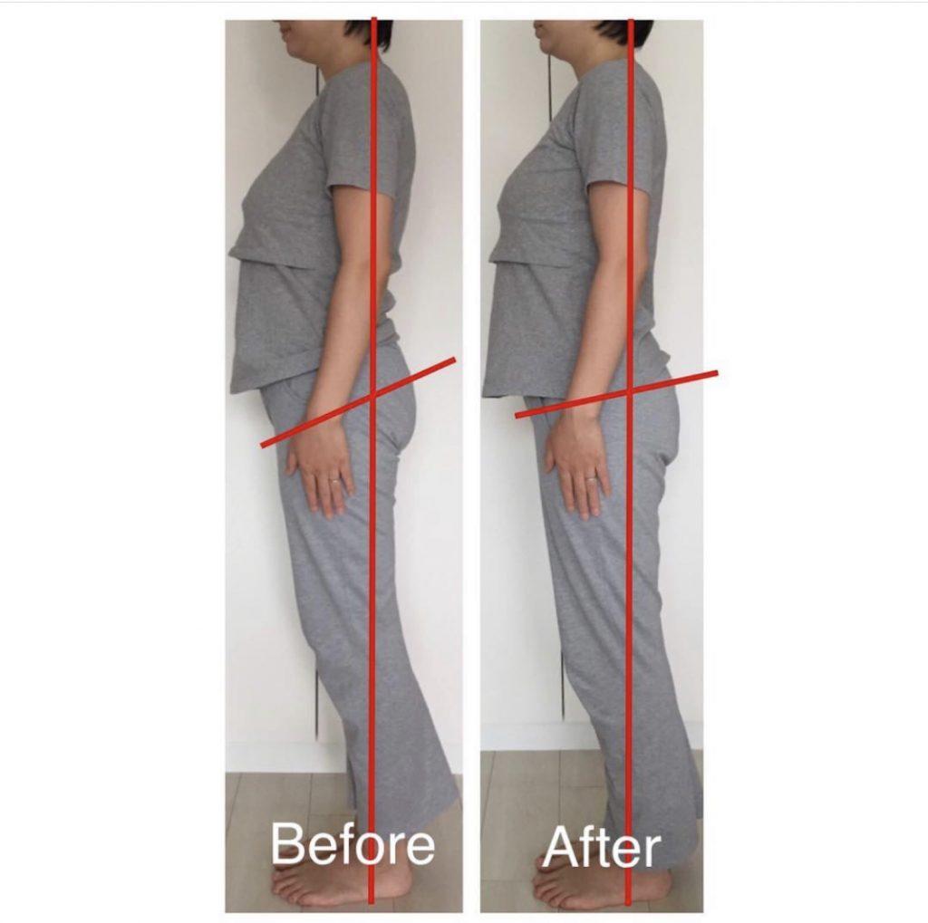 産後骨盤矯正を受けると産後の膝痛は改善するの?